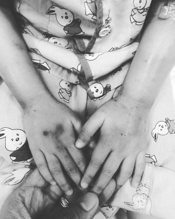 swollen hands of catie lucas